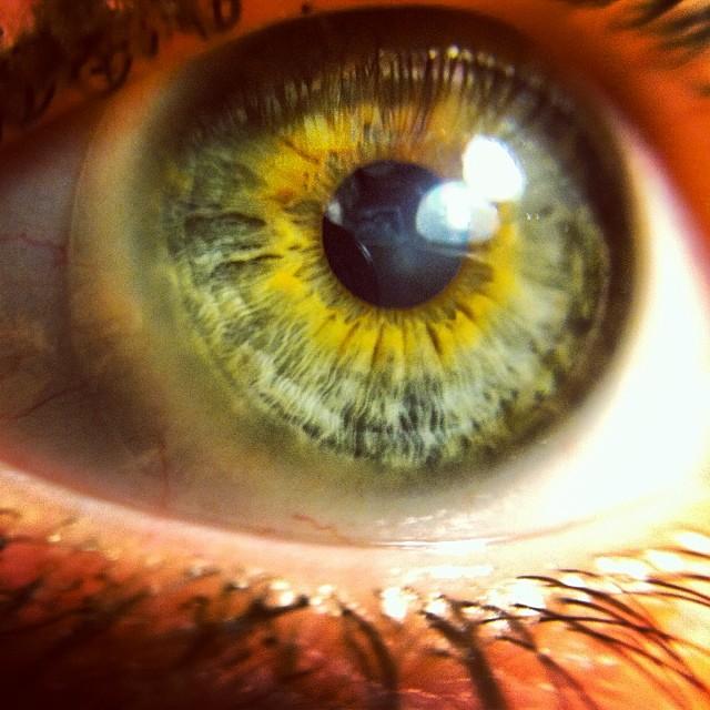 beka's eye